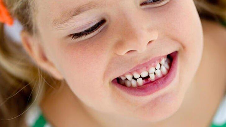 Çocuklarda Süt Dişlerinin Önemi