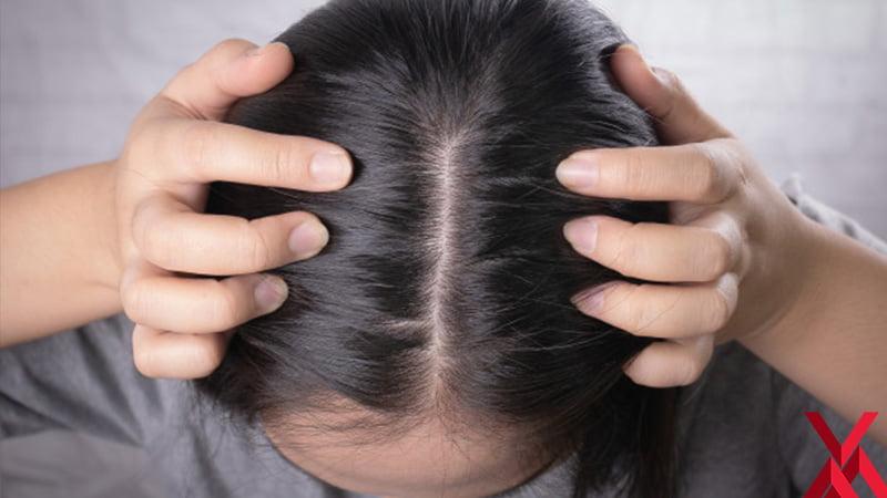 Saç Dökülmesinin Sebeplerine Dikkat