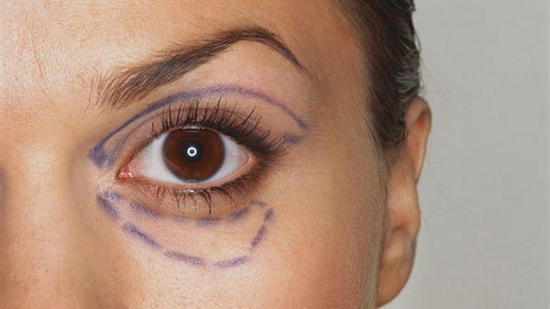 Badem Göz Estetiği Hakında Merak Edilenler